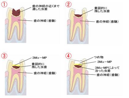 3Mix-MP法 - 歯の豆知識 | 宇都...